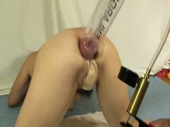 extreme-anal-fisting-and-pumping-mutilation
